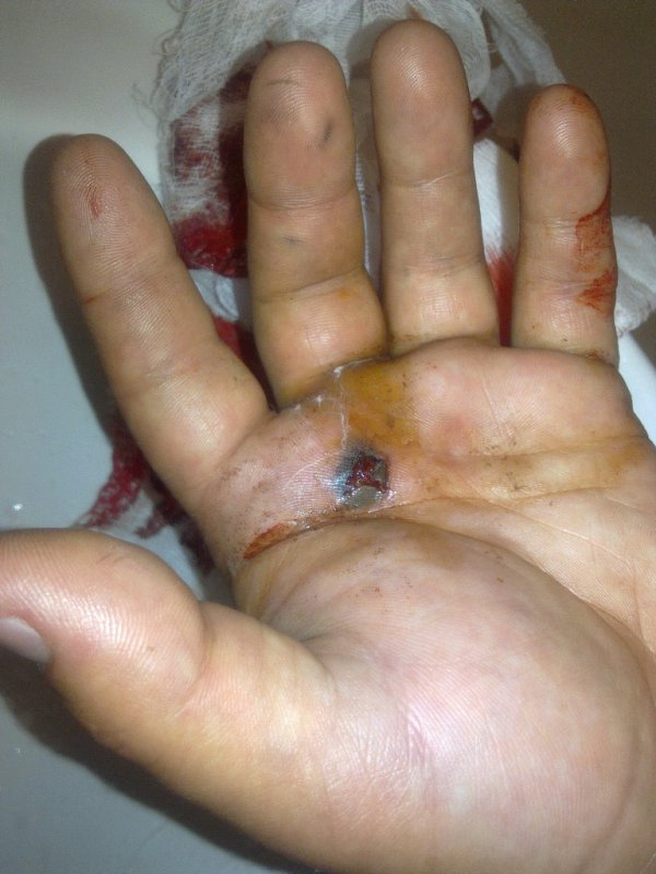 ЖАХ! Підстрелили хлопця за фотболку «СПАСИБО ЖИТЕЛЯМ ДОНБАССА» (+ФОТО)