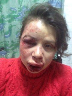 Журналістку та активістку Євромайдану Тетяну Чорновіл жорстоко побили