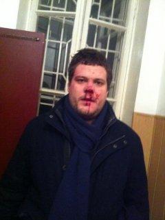 В центрі Києва побили нардепа та адвоката зі Свободи