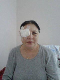 """Побита """"Беркутом"""" жінка не бачить правим оком: їй потрібно імплантувати штучний хрусталик"""