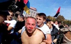 Шуфрича в Одесі хотіли вкинути у смітник і побили ВІДЕО