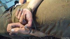 Бойовики виривали нігті полоненим та погрожували жінкам зґвалтуванням – ООН