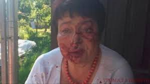 На Київщині побили голову ТВК